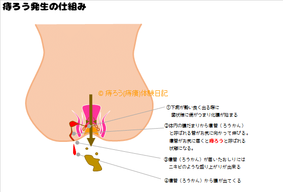ろう管の出口が肛門付近にあるか探す