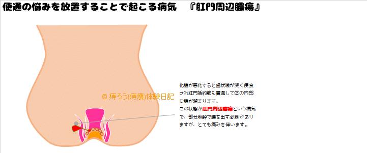不安定なお通じを放置する事で起こる病気『肛門周辺膿瘍』